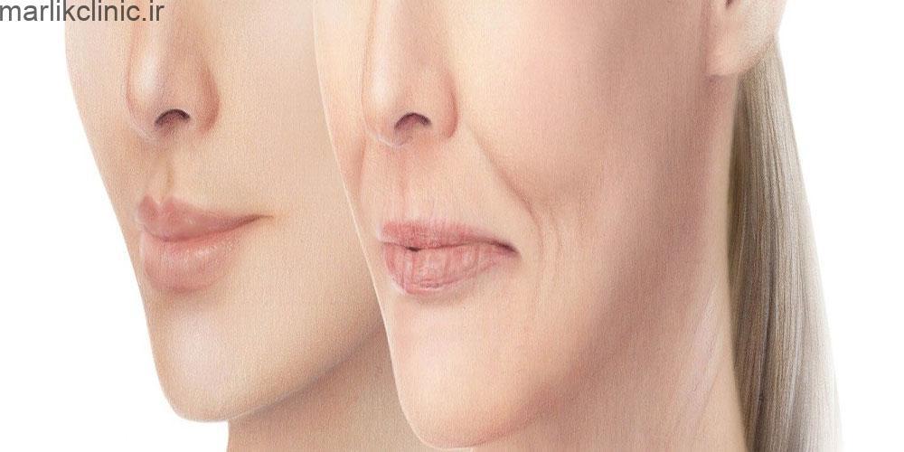 درمان خط لبخند و اخم با بوتاکس