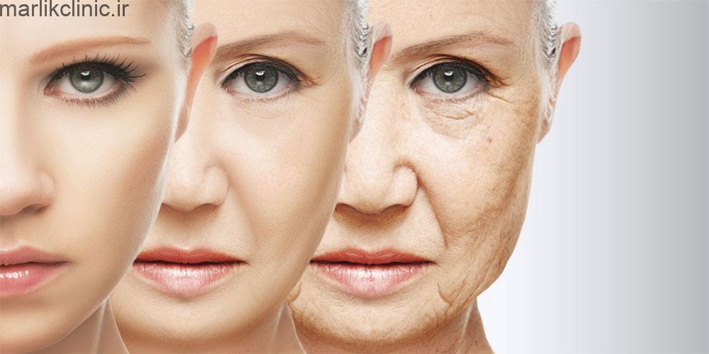 جوانسازی پوست با بوتاکس
