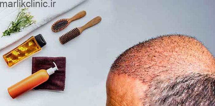 مراقبت های بعد از کاشت مو