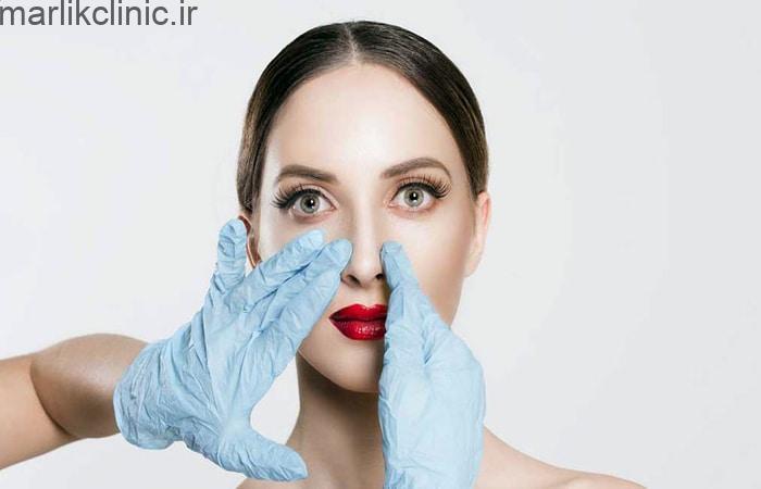 جراحان زیباییعمل بینی