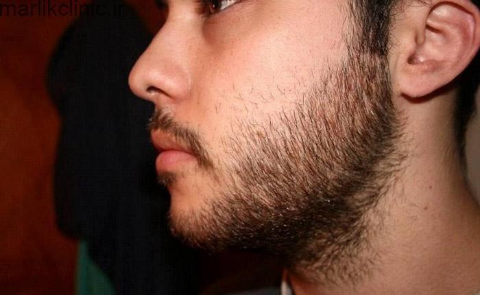 دلایل ریزش ریش
