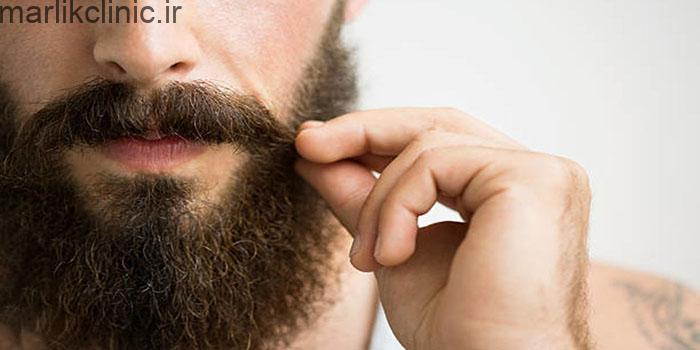 عوارض کاشت ریش و سبیل