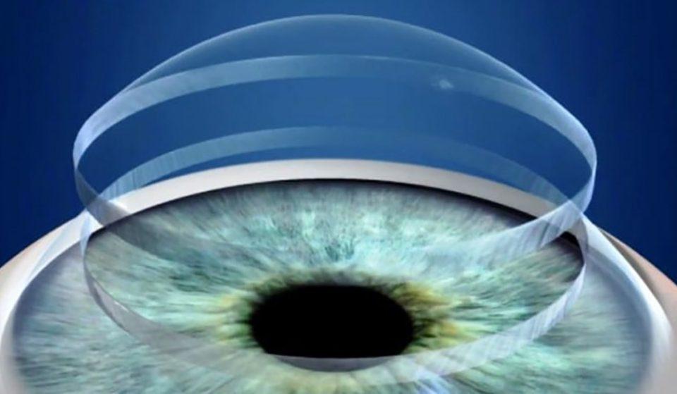 جراحی زیبایی قرنیه چشم